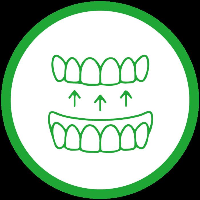 入れ歯の製作